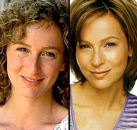 jennifer-grey-450w-nose-pre-post-caffeine-court